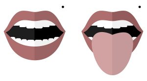 Smile with open mouth and a mole on the left cheek. Monroe Marilyn. Open mouth and tongue sticking out. Changes in color and appearance in diseases. Vector image. Flat design.